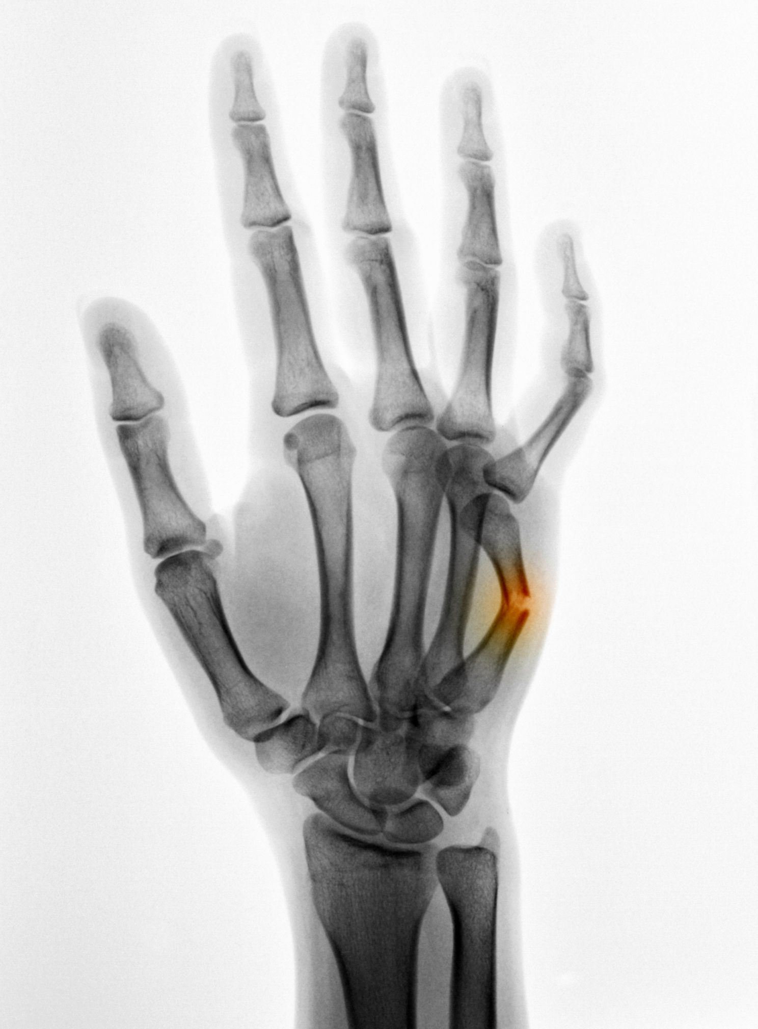 What You Need To Know About Metacarpal Fracture Meds Broken