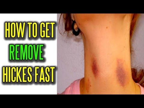 Best way to get rid of hickeys fast