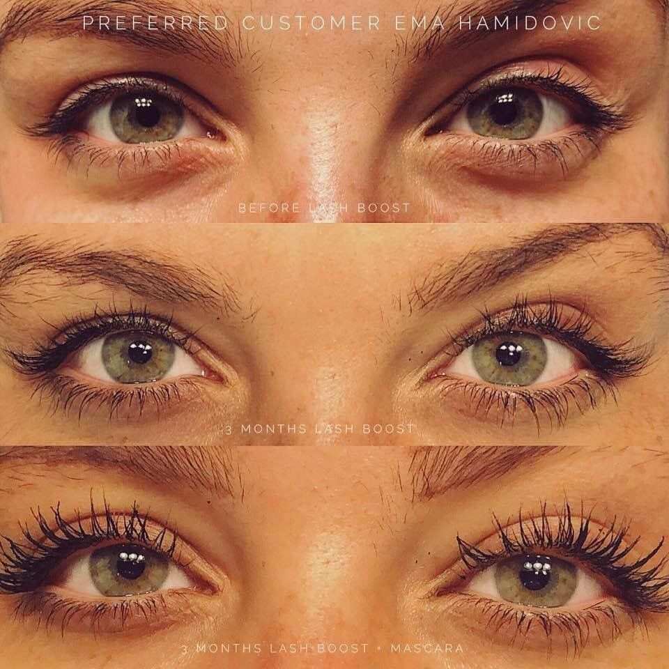 Longer Lashes Short Stubby Lashes Disappearing Eyebrows Lash