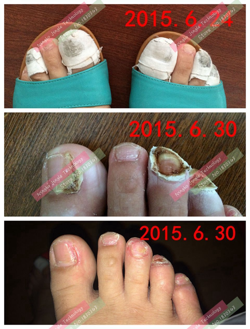 toe varisi nail fungus treatment special traditional Chinese ...