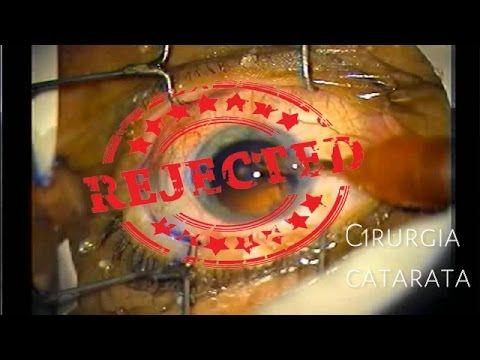 afb44758e Catarata - 02 Exercícios para Curar os Olhos Sem Cirurgia (Método Self  Healing) -