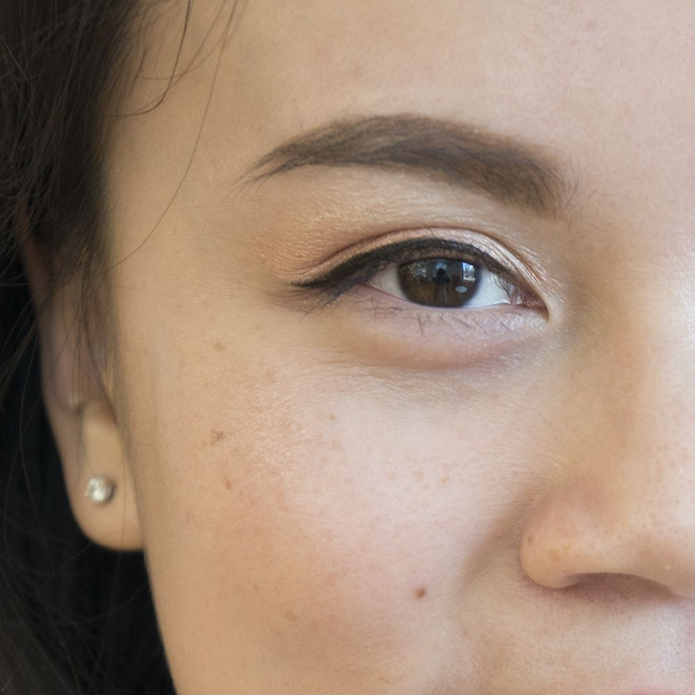 A Guide to What Causes Dark Circles Around The Eyes | Dark ...