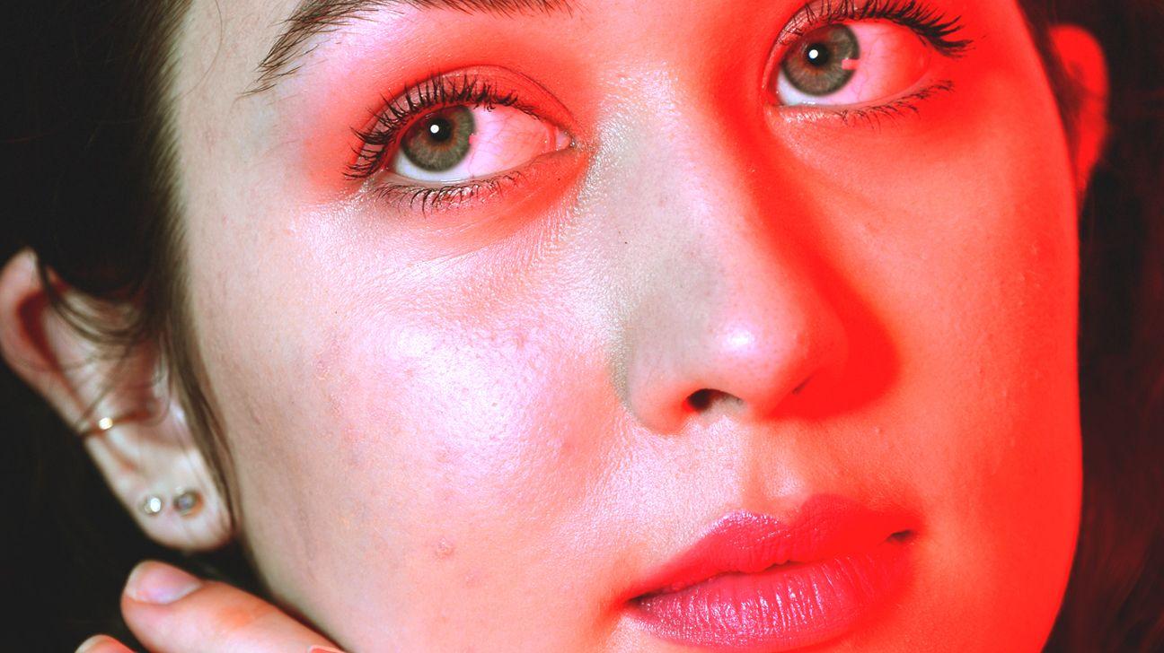 Your Skin on Stress: Acne, Hives, Rash, Bumps, Hair Loss ...