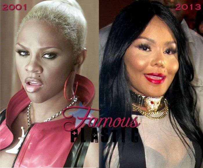10 Worst Celebrity Plastic Surgery before and after   ALL ...