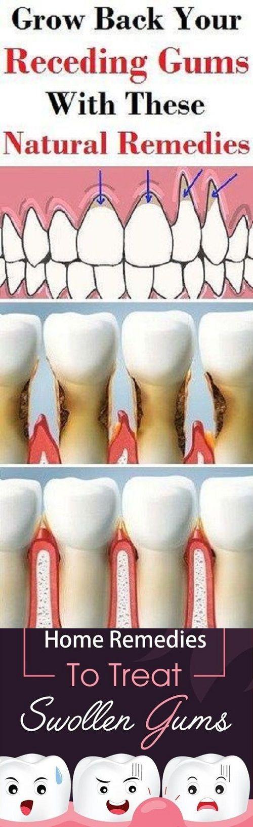 Swollen gum remedies medicine for swollen gums over the counter