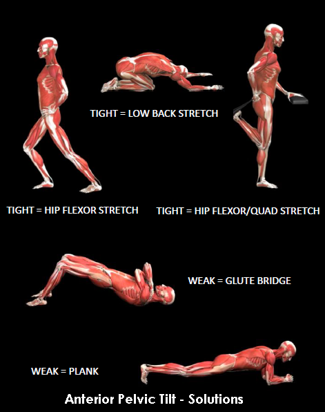 34++ How long does anterior pelvic tilt take to correct inspirations