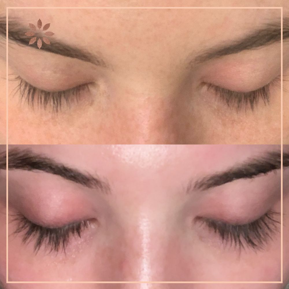 Latisse Eyelash Serum available online in Canada from ...