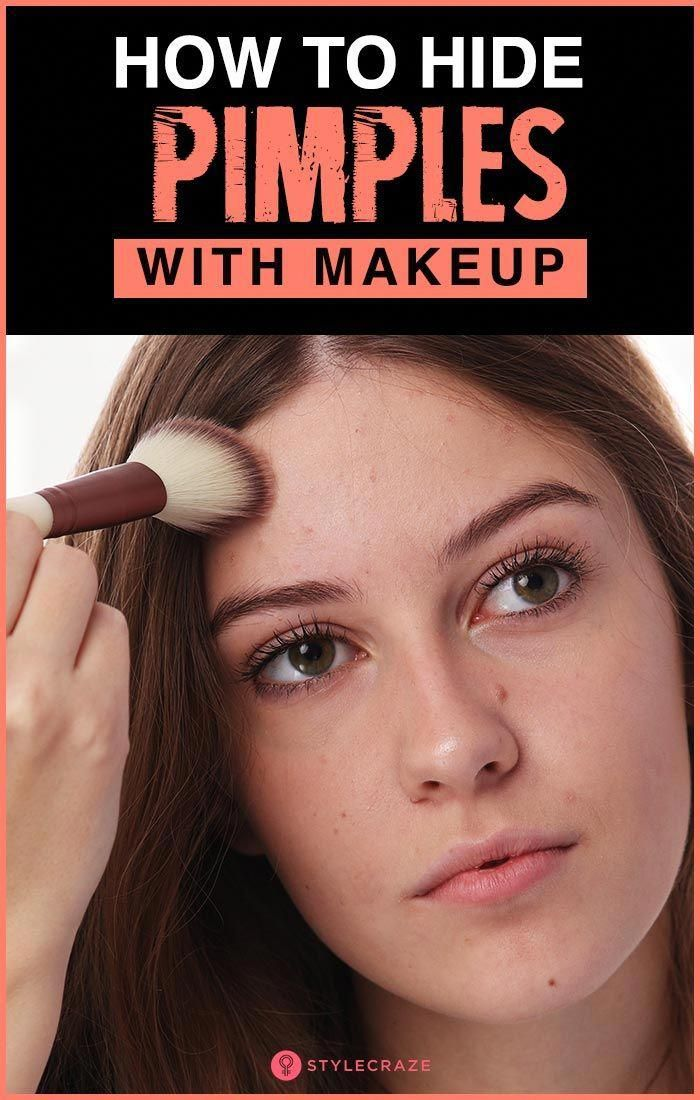 How To Hide Pimples (Acne) With Makeup makeup Tips