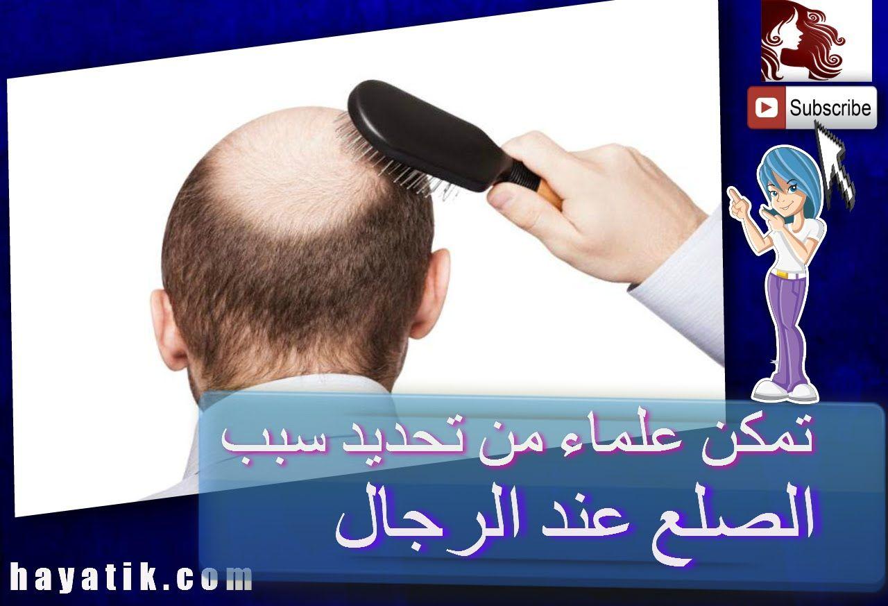 تمكن علماء من تحديد سبب الصلع عند الرجال علاج تساقط الشعر للرجال علاج الصلع الوراثى Youtube Fitbit Music