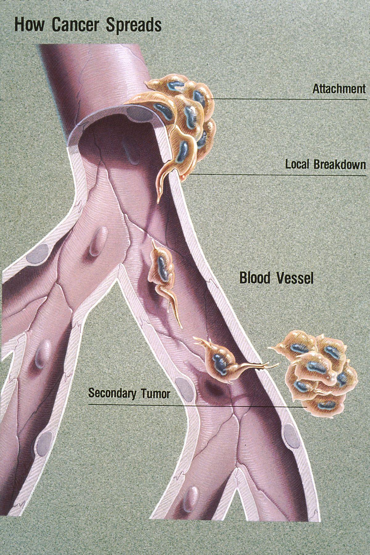 Metastasis Wikipedia Metastatic cancer, Mesothelioma