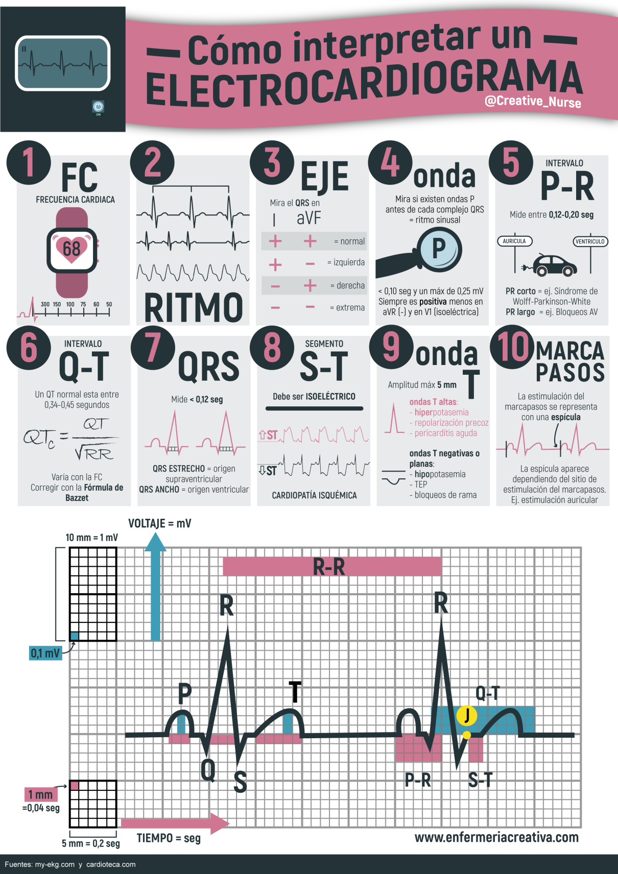 Cómo interpretar un electrocardiograma | Enfermería, Medicina y Salud