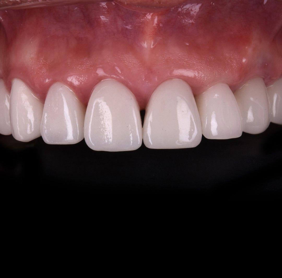 Dental implants cost in Croatia. Dental implants cost