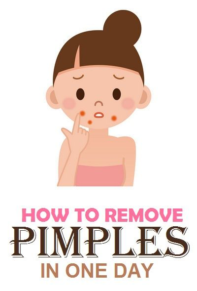 how to get rid pimples in a day