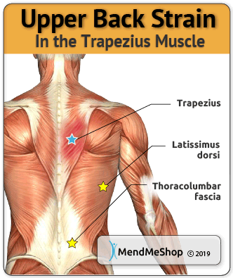 37++ What muscle is under the shoulder blade ideas in 2021