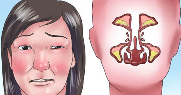 abf250f76c83d392de2406356da18683 - How To Get Rid Of Stuffy Nose On One Side