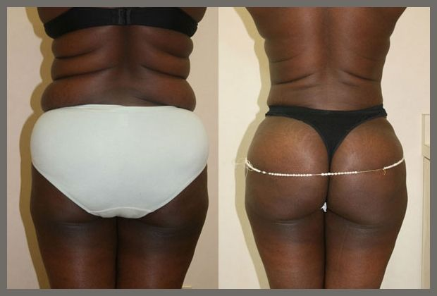 The Brazilian Butt Lift can dramatically change your posterior