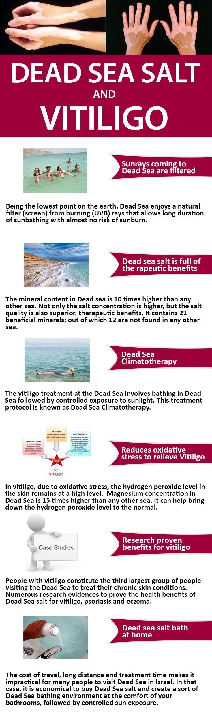 During soaking in water mixed with Dead Sea salt, the