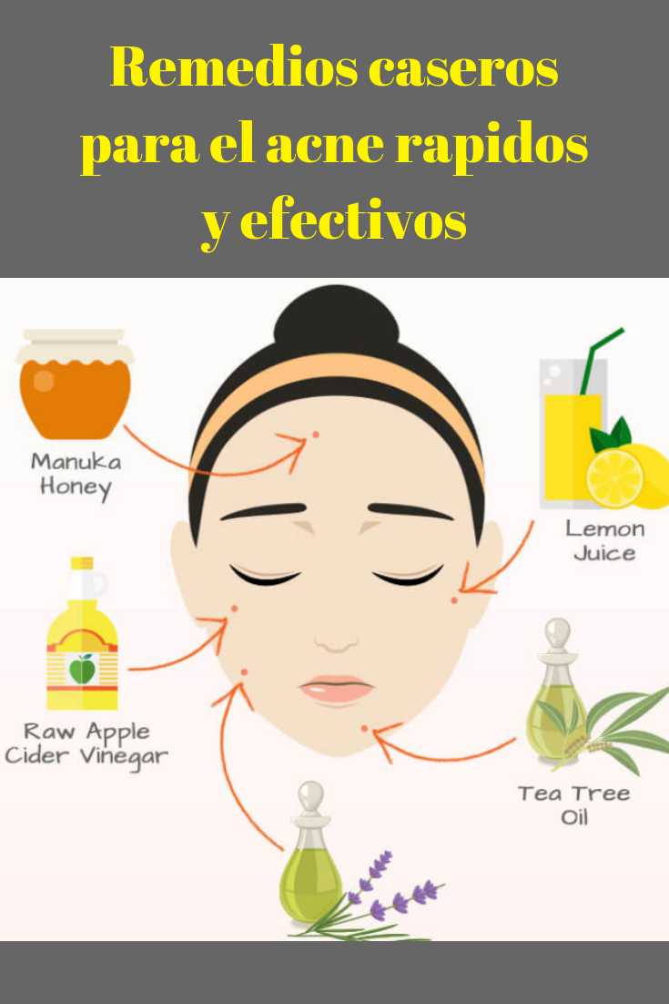Remedios Caseros Para El Acne Rapidos Y Efectivos