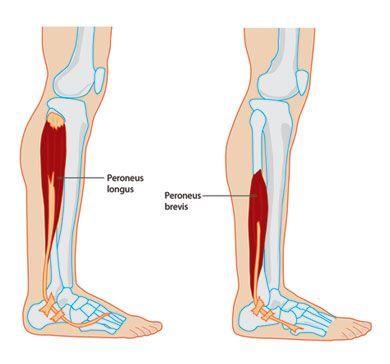 Peroneal Tendinopathy And Tendonitis Muscle Atrophy Peroneus Longus Leg Muscles Diagram