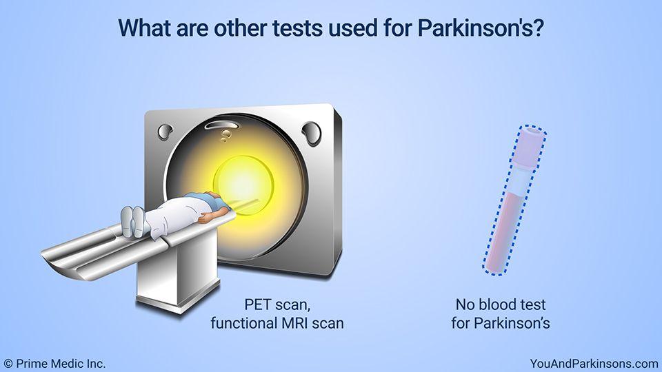 Diagnosis Of Parkinson S Disease Parkinson S Disease Pet Scan