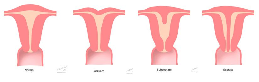 Myth You Can T Carry To Term With An Arcuate Uterus National