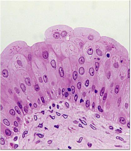 transitional epithelium in bladder Bio245 Pinterest Anatomy