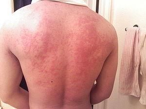 Image result for mastocytosis