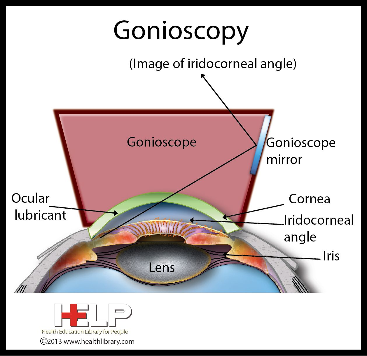 Gonioscopy Medical Mnemonics Eye Exercises Opthalmic Technician