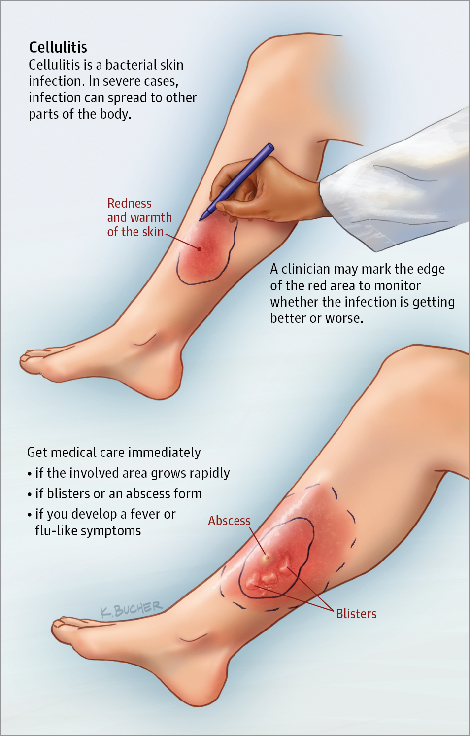 Cellulitis is an infection of the skin or underlying tissues ...