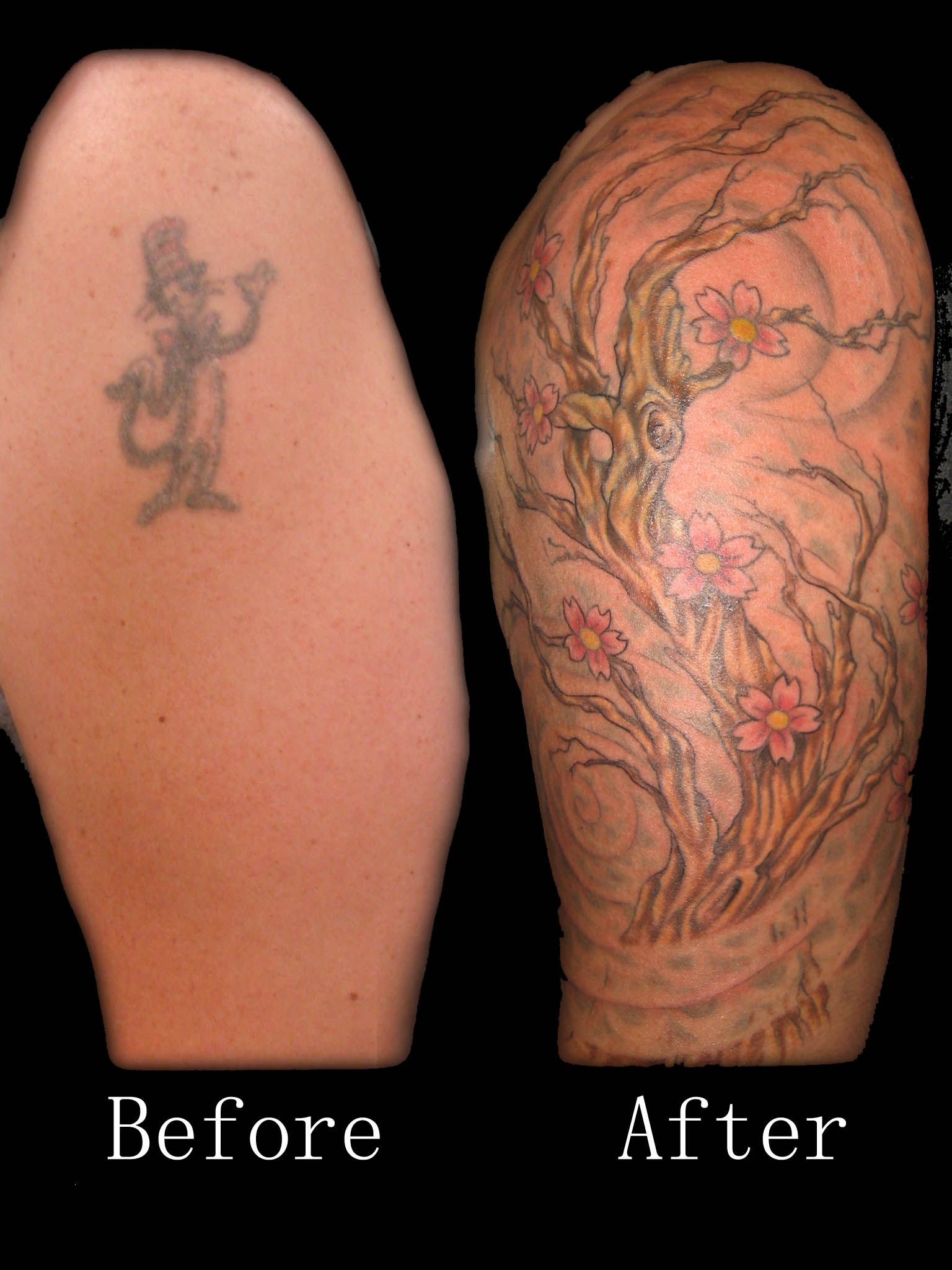 Before And After Tattoo