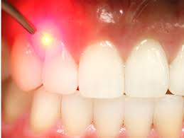Hygienist Dental Laser Training Certification and Courses in