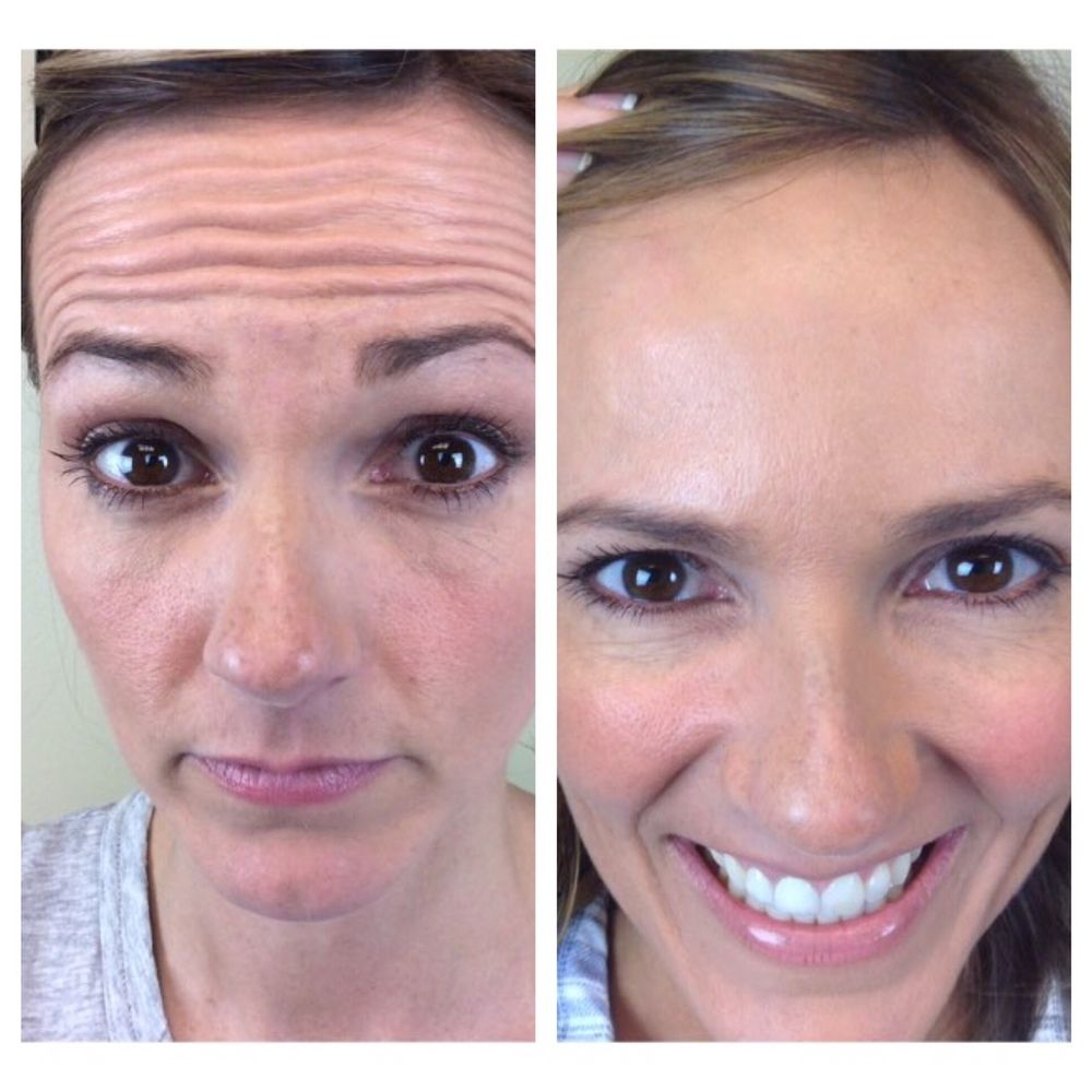 Shekc Jennys Botox Before And After Health Pinterest