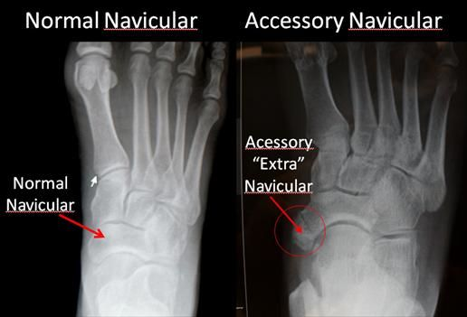 Accessory Navicular Bone (Os Naviculare) - footEducation | Accessory ...