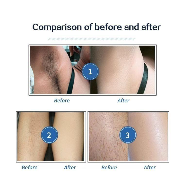 Photo of Laser hair removal permanent epilator home epilasyon shaving…