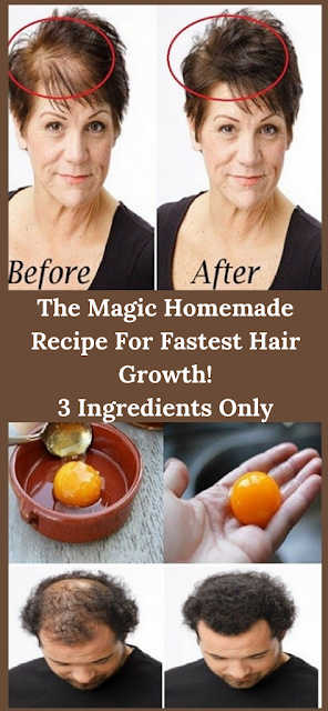 The Magic Homemade Recipe For Fastest Hair Growth 3 Ingredients Only