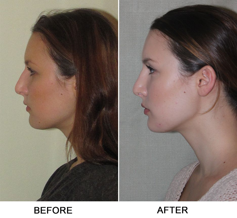 Turbinate Reduction, Septoplasty (With images) Nasal