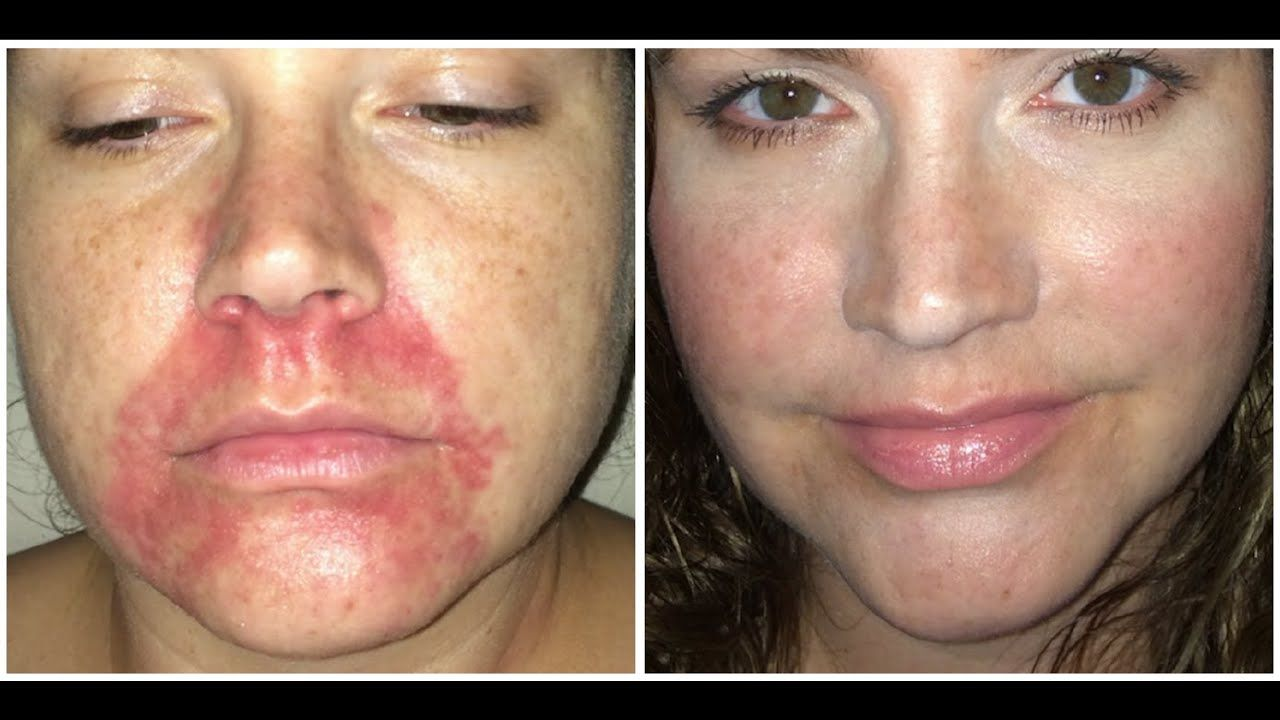 Perioral dermatitis how i healed this unsightly rash