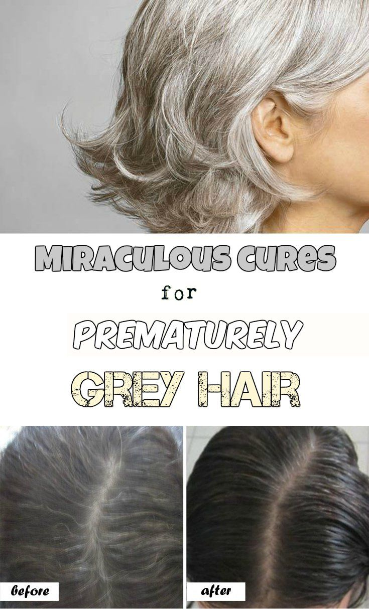 Natural Remedies For Gray Hair