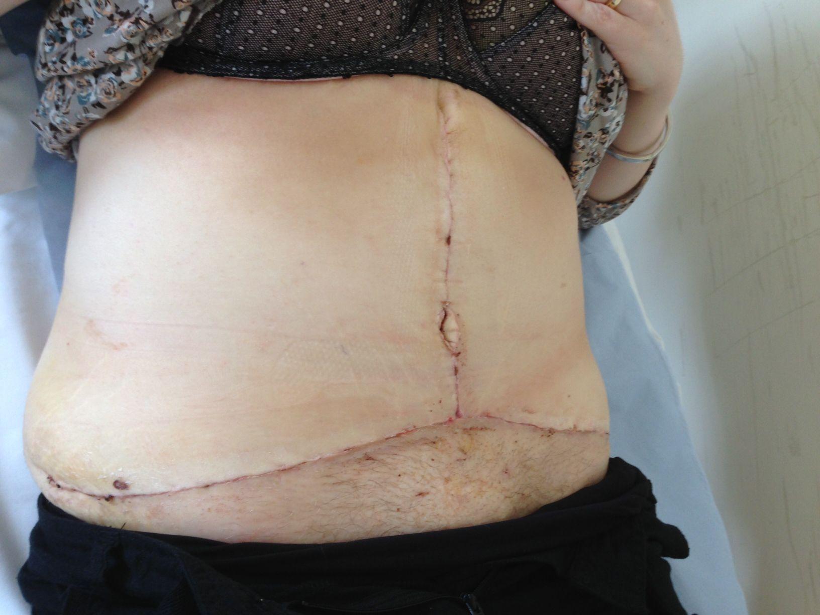 Bad Tummy Tuck Example Celebrity Plastic Surgery Bad