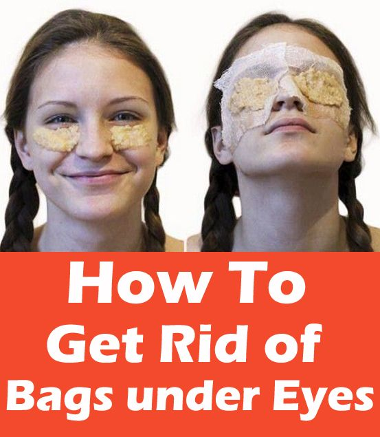 how to get rid of eye makeup