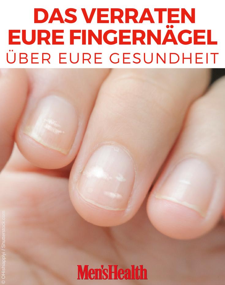 Das Verraten Deine Fingernagel Uber Deine Gesundheit