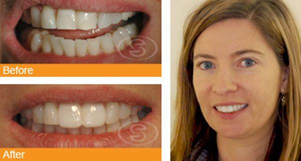 Dental Veneers In Birmingham @ 99HealthPlus.Com
