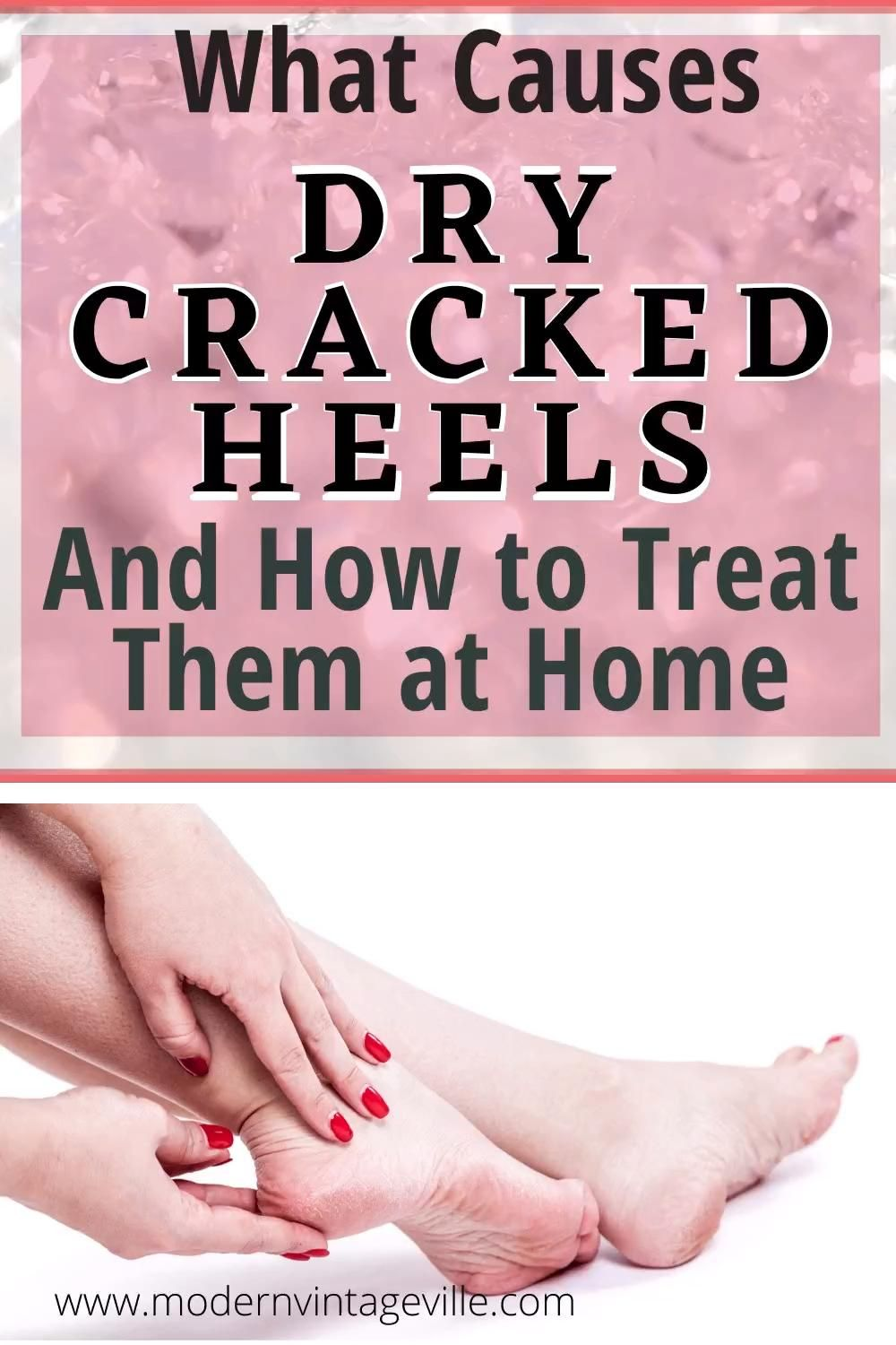Dry cracked heels: causes, prevention, remedies an