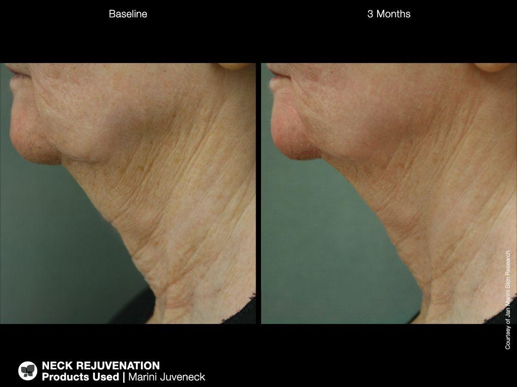 Introducing Jan Marini Juveneck Dermahut Serious Skin Care Face Wrinkles Forehead Wrinkles