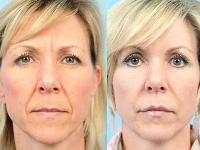 pszoriázisos módszerek a betegsg ok kezelésére vörös foltok az arcon pattanások