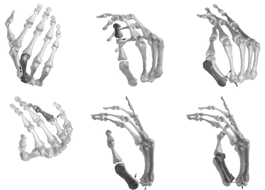 hand bones for homework Art, Anatomy drawing