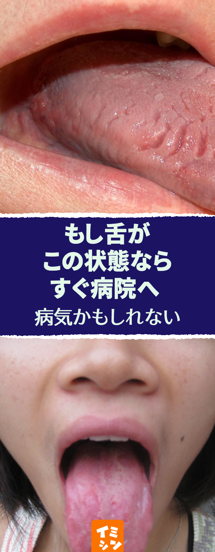 あなたの舌は健康 舌は健康のバロメーター 今すぐ鏡でチェック 舌 健康 チェック 病気 喋ったり 味わったりなど 舌 は私たちの生活において重要な役割を持っています また 昔から 舌は内臓の鏡 と言われ 舌の色や状態でカラダの健康状態が分かると言われ