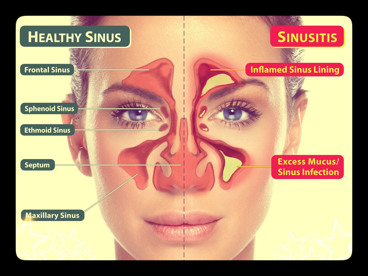 Diagram Of Your Sinuses - Basic Guide Wiring Diagram •