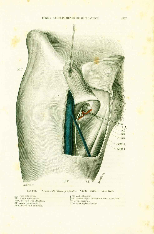 1897 Obturator artery, Ischio-pubic region, Woman Anatomy, Original ...