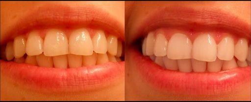 Kako izbijeliti zube protezu